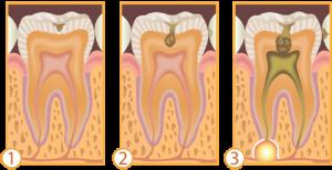 Esquema de progressão da cárie. 1 - cárie em esmalte. 2 - cárie já atingindo tecido dentinário. 3 - cárie atingindo tecido pulpar e causando lesão apical, com necessidade de tratamento endodôntico (canal). Esquema extraído do site www.google.com.